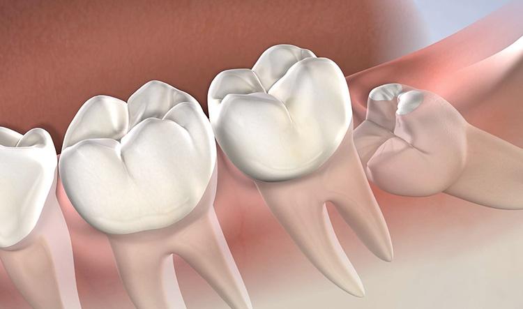 Medicación recomendada tras una extracción dental en 3 pautas