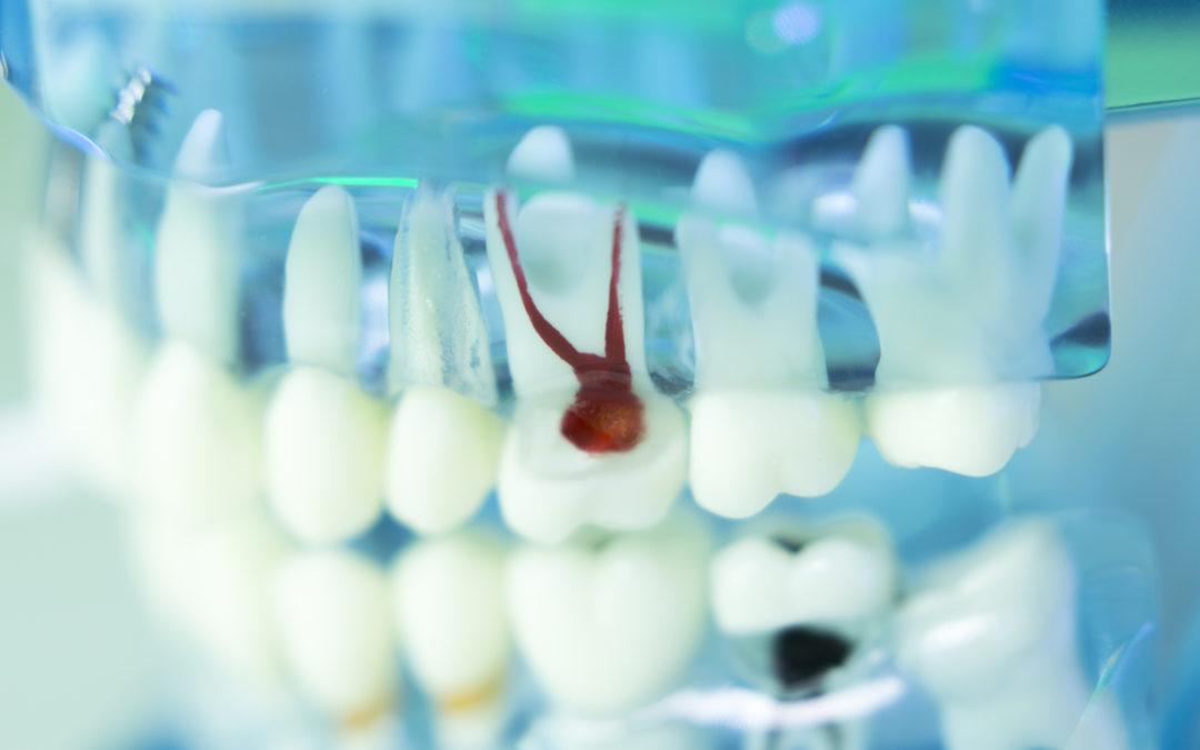 3 recomendaciones tras tratamiento de endodoncia