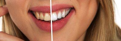blanqueamiento dental dentalbaron