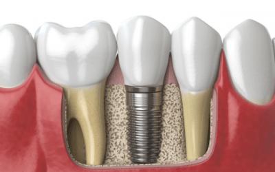 Recomendaciones que debe seguir después del tratamiento de implantes dentales