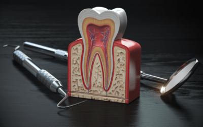 Recomendaciones para después de un curetaje dental