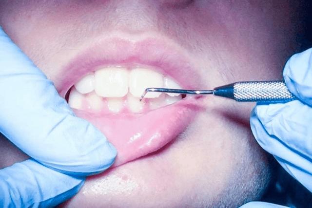 5 Motivos para hacerse la limpieza y una revisión dental anual