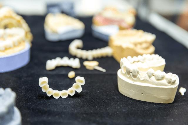 Diferencias entre puentes e implantes dentales