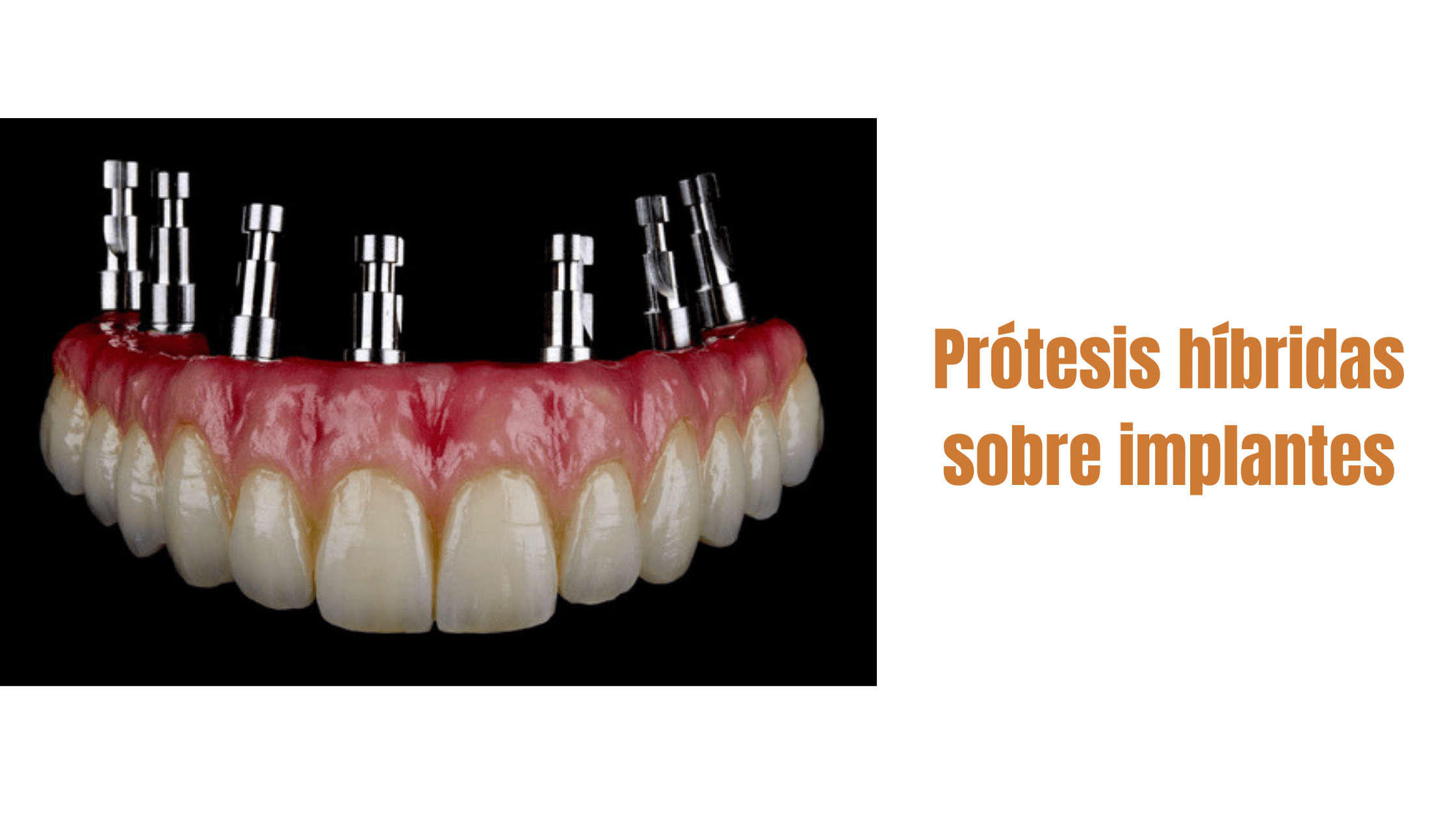 blog-dentalbaron-protesishibrida