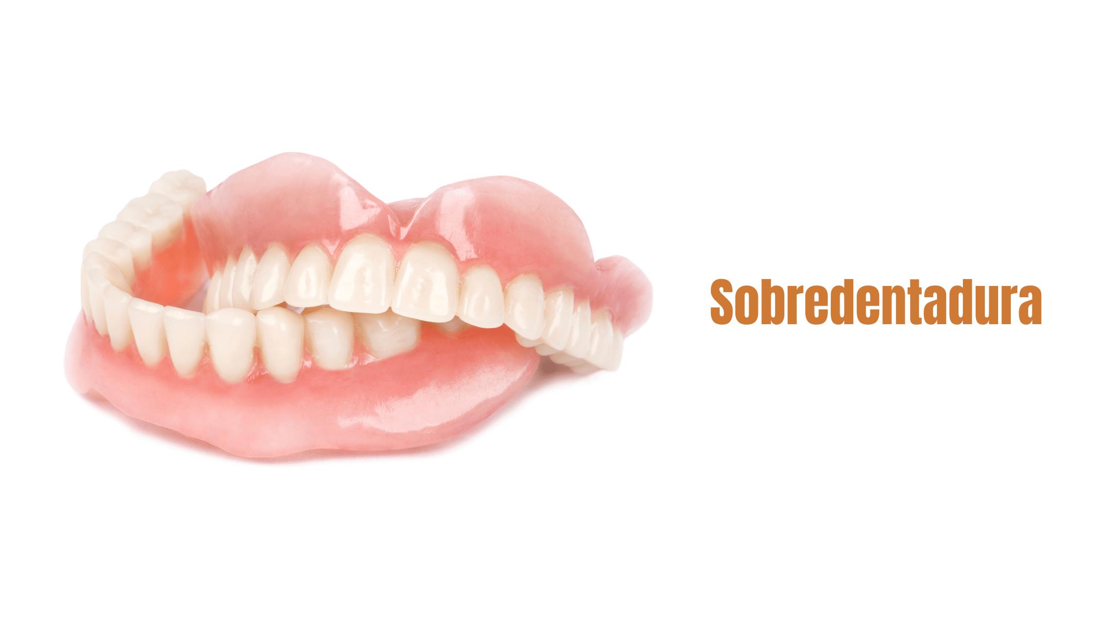 blog-dentalbaron-sobredentadura