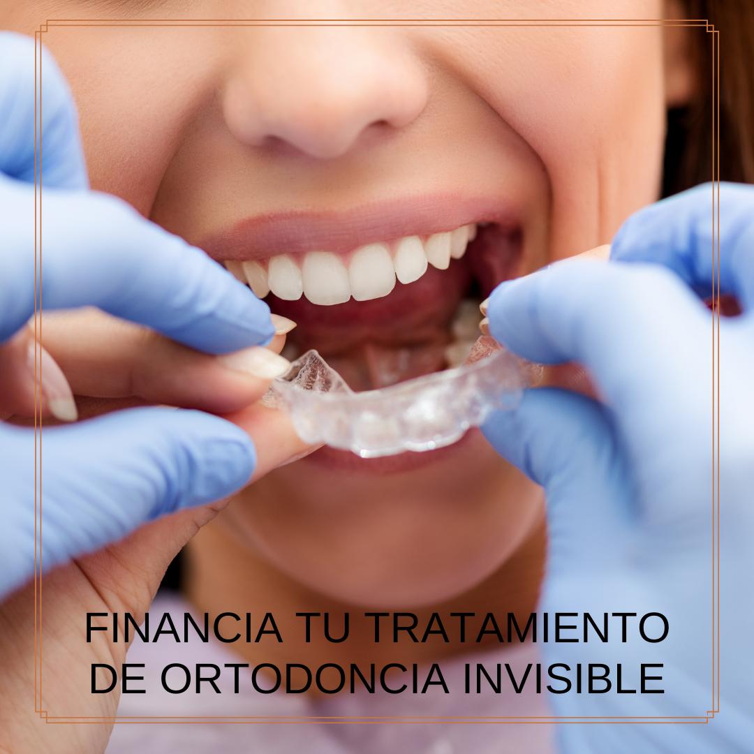 ortodoncia dentalbaron