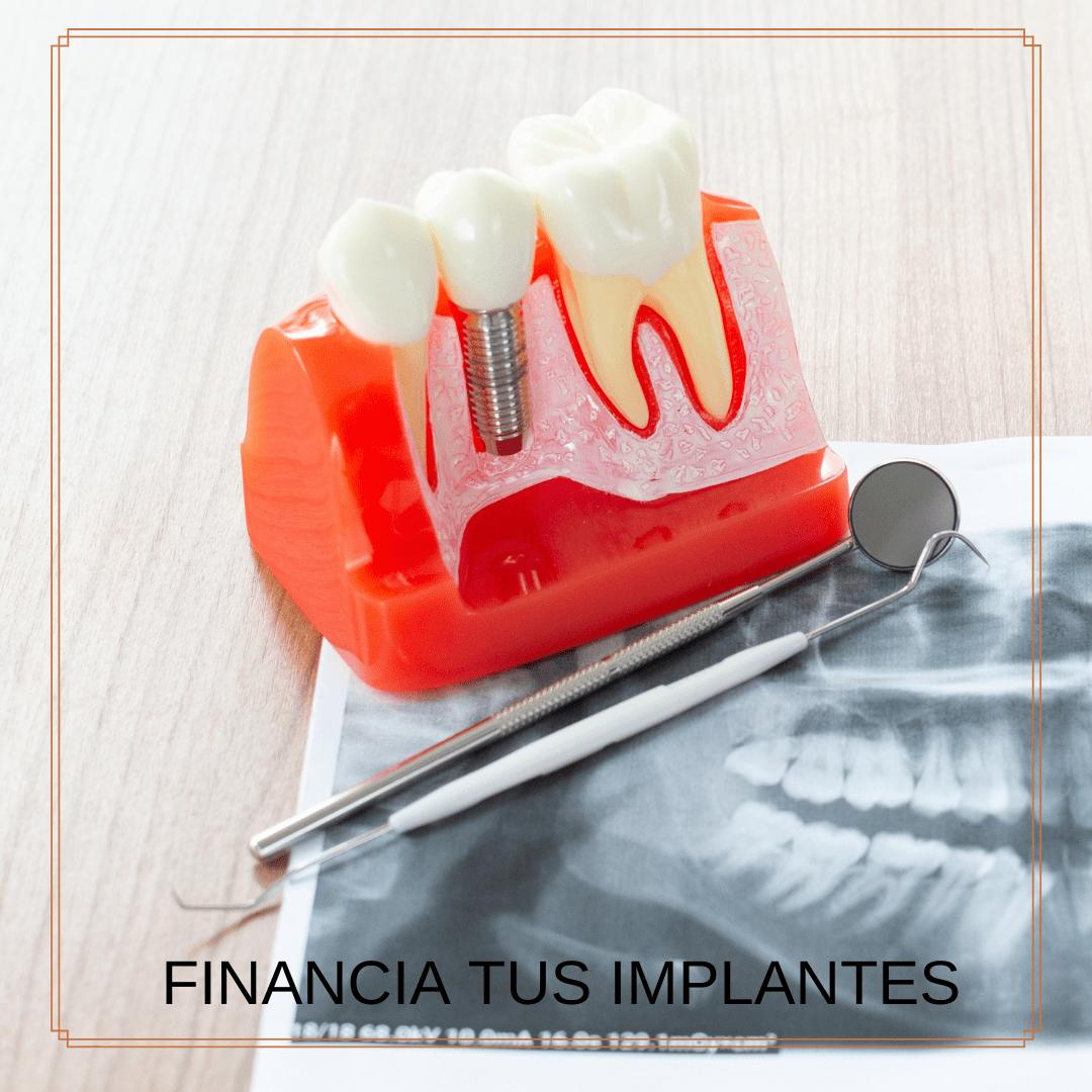 dentalbaron implantes