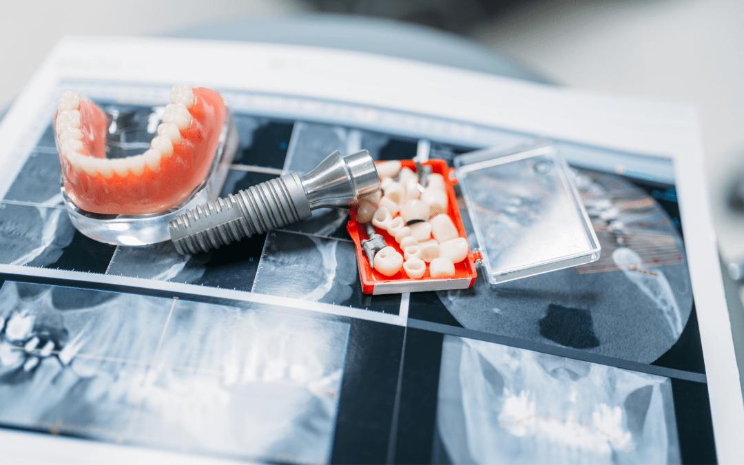 Diferencias entre prótesis fija, prótesis híbrida sobre implantes y sobredentadura. ¿Cómo elegir la más adecuada para ti?