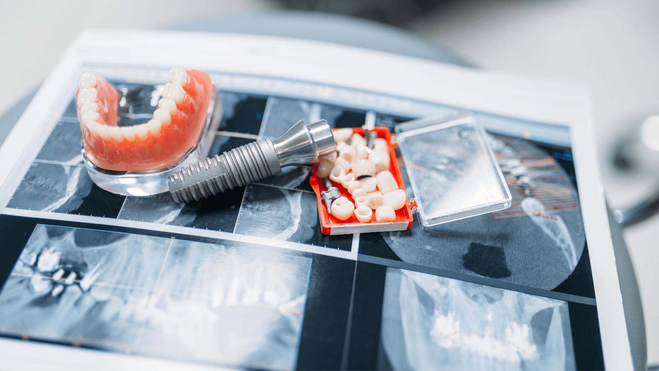 blog-dentalbaron-implantes